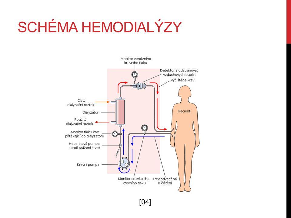 Schéma hemodialýzy [04]